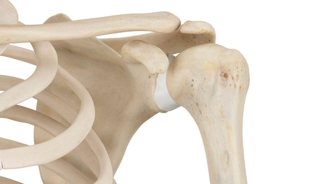 descalcificación de huesos